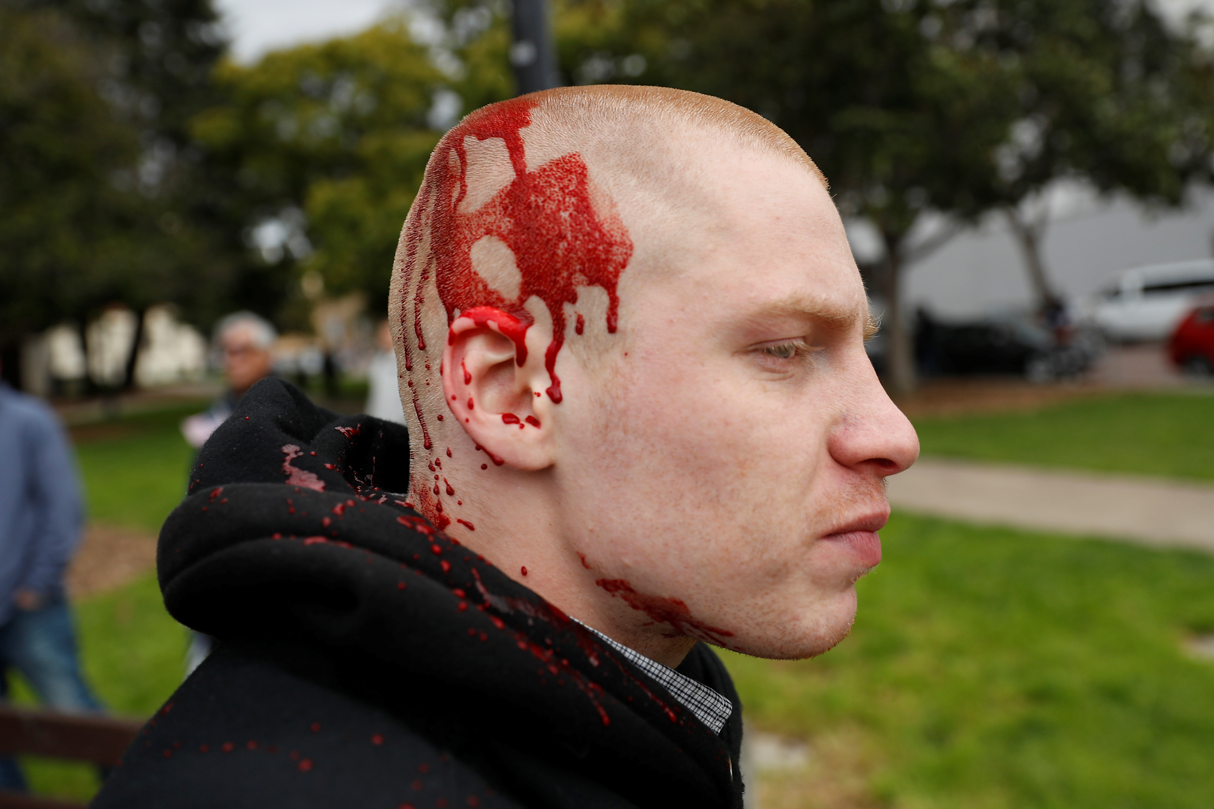 """An injured demonstrator walks away after a """"People 4 Trump"""" rally turned violent in Berkeley, California March 4, 2017"""